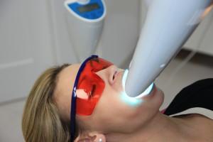 wybielanie zębów lampa Beyond