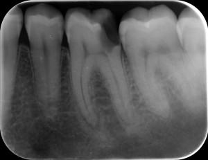 Implanty zębowe- leczenie kanałowe - klinika Warszawa