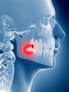 chirurgia stomatologiczna zatrzymany ząb