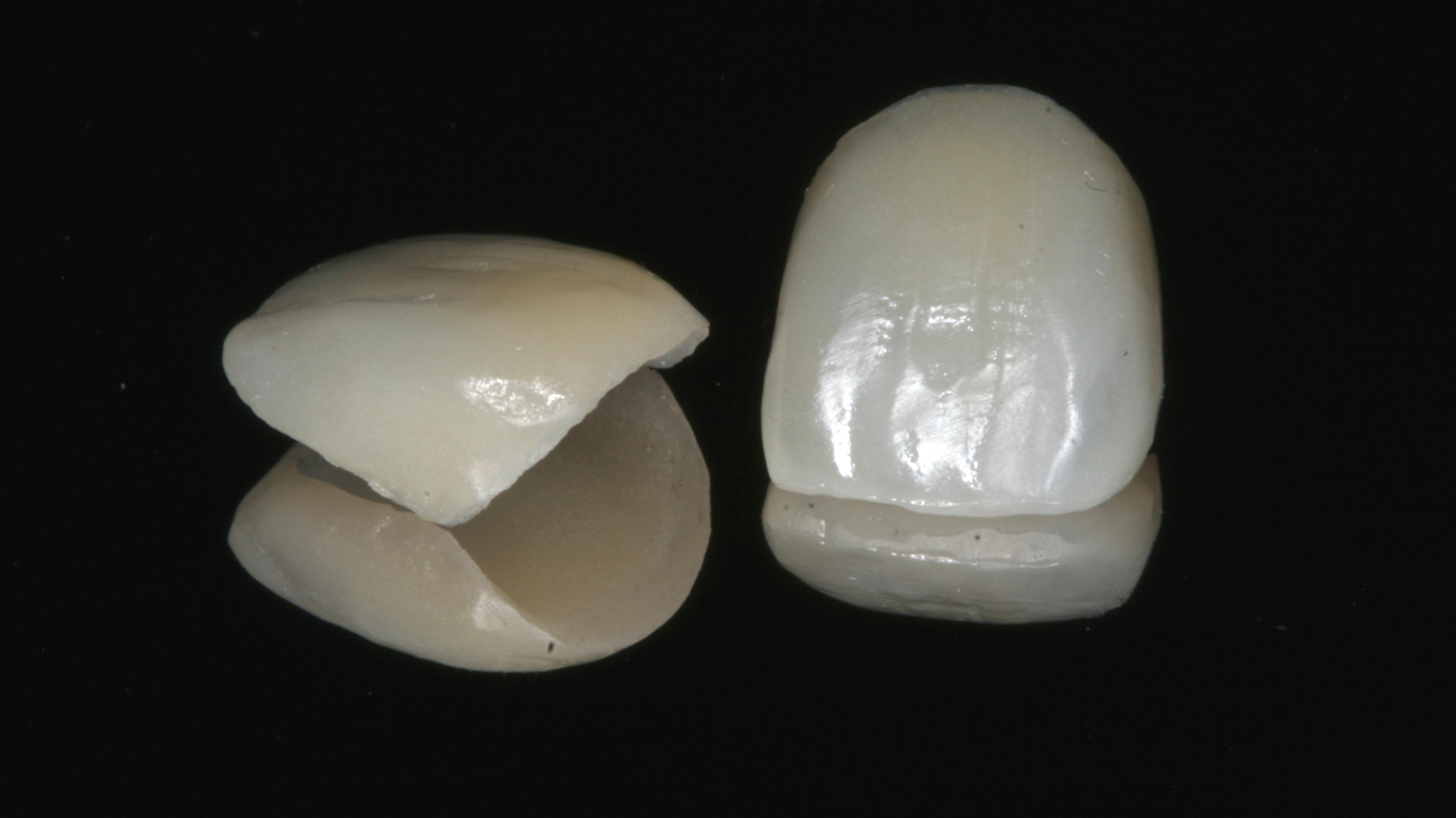 Licówki - element protetyki zębów